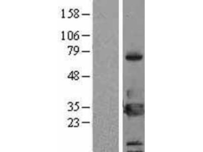 14-3-3 eta Overexpression Lysate