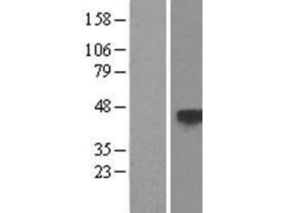 TSP50 Overexpression Lysate
