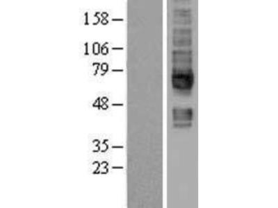 SMVT/SLC5A6 Overexpression Lysate