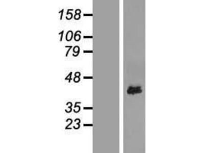 YIPF3 Overexpression Lysate