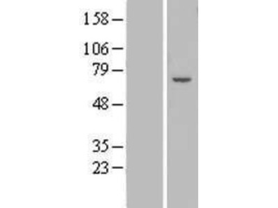ZNF545 Overexpression Lysate