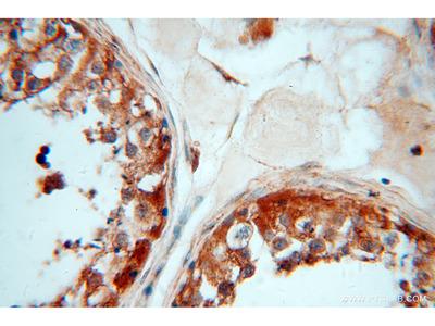 ATP6V1E1 antibody