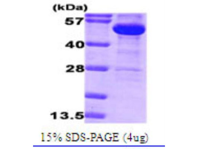 Recombinant Bacterial Glucose 6 Phosphate Dehydrogenase Protein