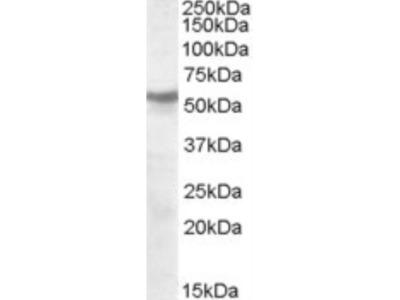 Nicotinic Acetylcholine Receptor beta Antibody