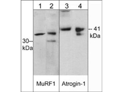 Muscle Atrophy Ubiquitin Ligase Antibody Sampler Kit