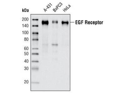 Immunocytochemistry of EGFR