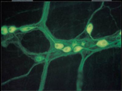 Anti-Neurofilament M (145 kDa) Antibody, CT