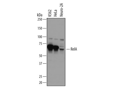 Best NFkB Antibody from R&D Systems