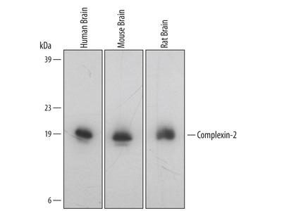 Complexin-2 Antibody
