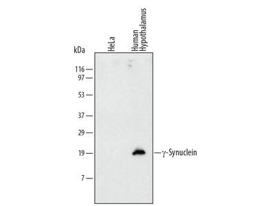 gamma-Synuclein Antibody