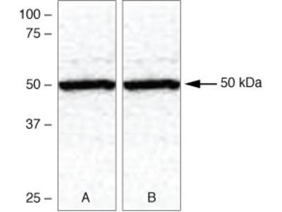 TXNIP Antibody