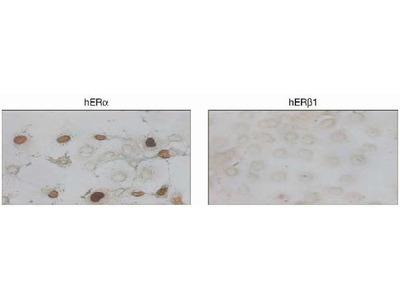 Estrogen Receptor alpha Monoclonal Antibody