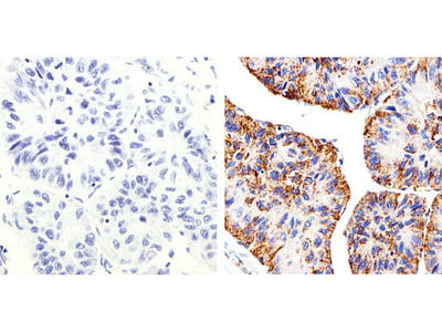 Claudin 2 Monoclonal Antibody (12H12)
