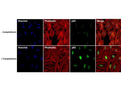 p53 Monoclonal Antibody (DO-1)