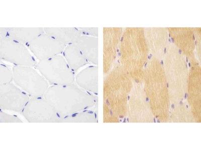 VPS34 Polyclonal Antibody