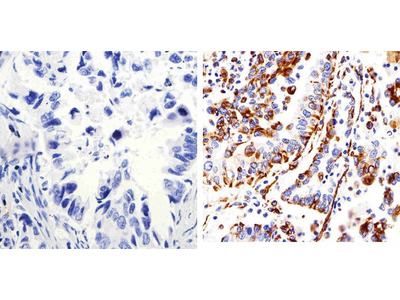 Connexin 43 Expression in Lung Microvessels