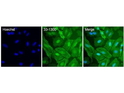 p38 MAPK Monoclonal Antibody (p38-3F11)