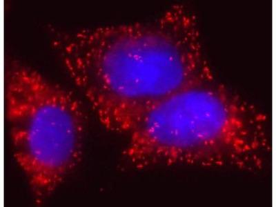 ECHD Monoclonal Antibody (7F6AF11)