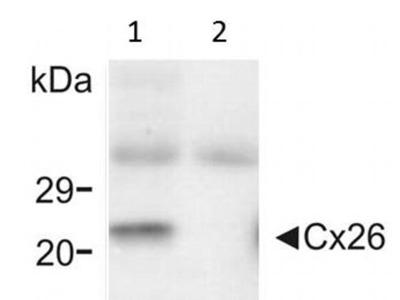Connexin 26 Monoclonal Antibody (CX-12H10)