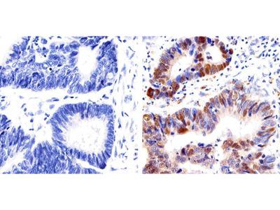 p53 Monoclonal Antibody (PAB1801)
