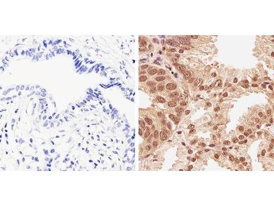 Phospho-AKT1 (Thr308) Polyclonal Antibody