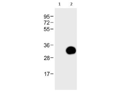 GFP Tag Polyclonal Antibody