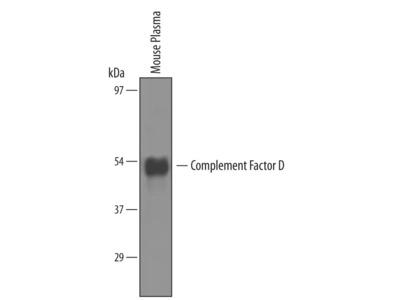 Complement Factor D /Adipsin Antibody