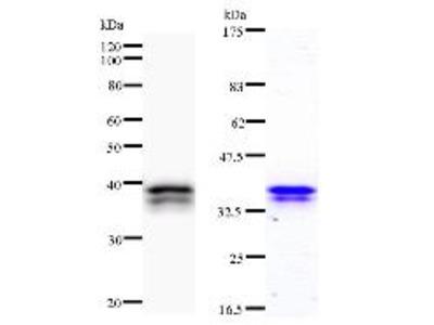 CHD6 Monoclonal Antibody