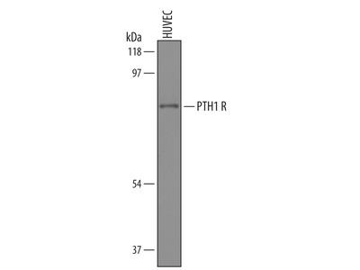 PTH1R /PTHR1 Antibody