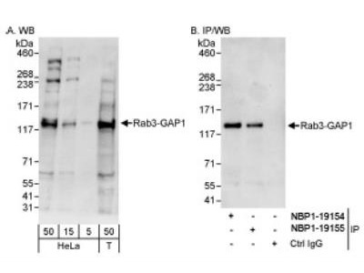 RAB3GAP1 Antibody