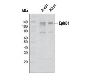 EphB1 (5F10) Mouse mAb