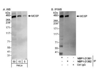 NG2 / MCSP Antibody