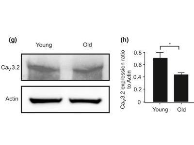 Cav3.2 Antibody (S55-10)