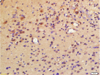 LPCAT2 Antibody, Biotin Conjugated