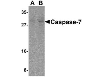 RABBIT ANTI CASPASE-7 (N-TERMINAL)