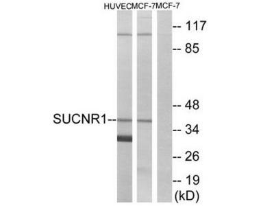 SUCNR1 antibody