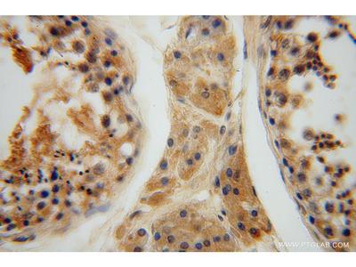 HIP14; ZDHHC17 antibody