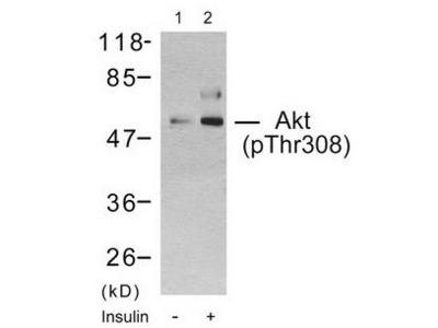 AKT (Phospho-Thr308) antibody