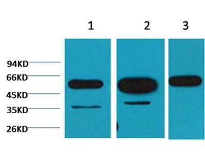 beta tubulin antibody