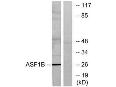 ASF1B antibody