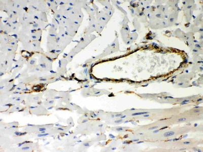 Anti-Vimentin Picoband Antibody