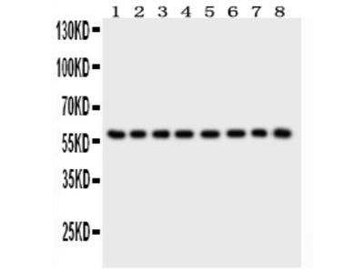 Anti-P2X2/P2RX2 Picoband Antibody