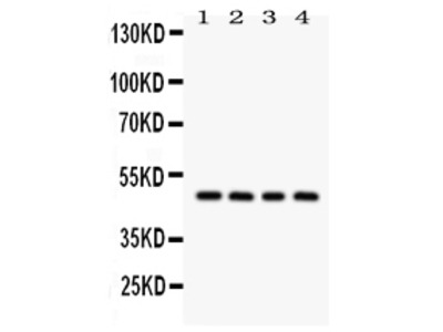 Anti-alpha 1 Antitrypsin/SERPINA1 Picoband Antibody