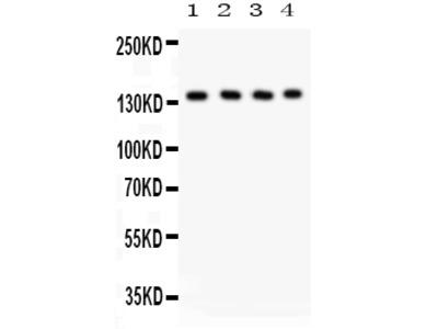 Anti-Phospholipase C beta 1/PLCB1 Picoband Antibody