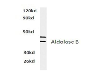 anti Aldolase B / ALDOB