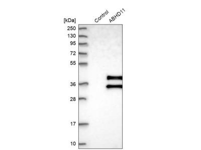 Anti-ABHD11 Antibody