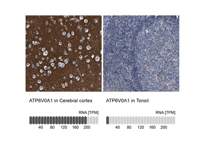 Anti-ATP6V0A1 Antibody