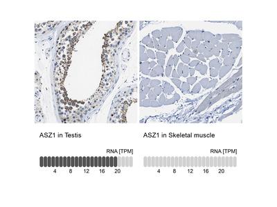 Anti-ASZ1 Antibody
