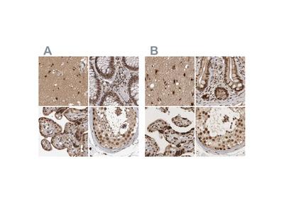 Anti-CBLL1 Antibody