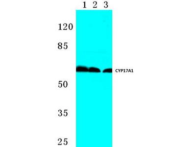 anti CYP17A1